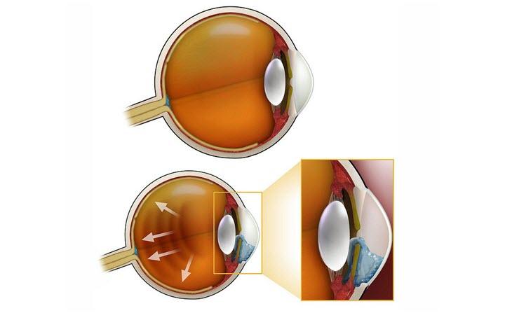 Этапы заболевания Глаукомой