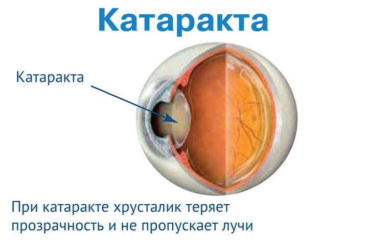 Причины появления катаракты