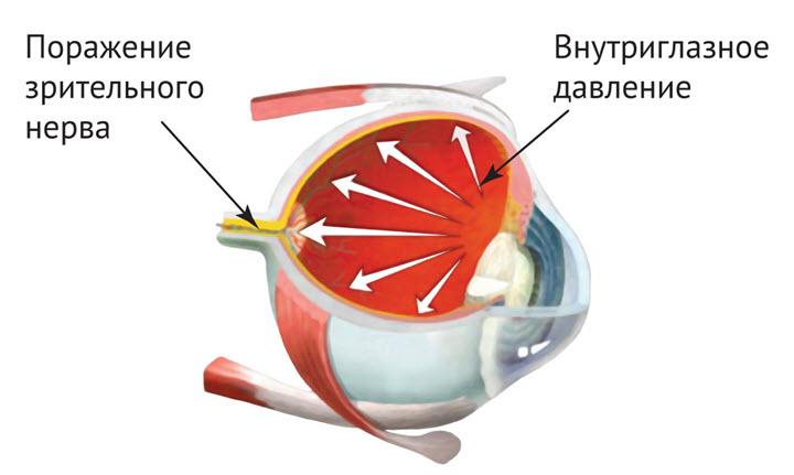 Схема поражения зрительного нерва