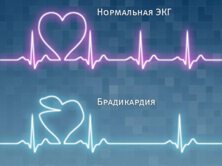 Синусовая брадикардия сердца