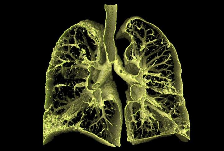 Альвеолит легких