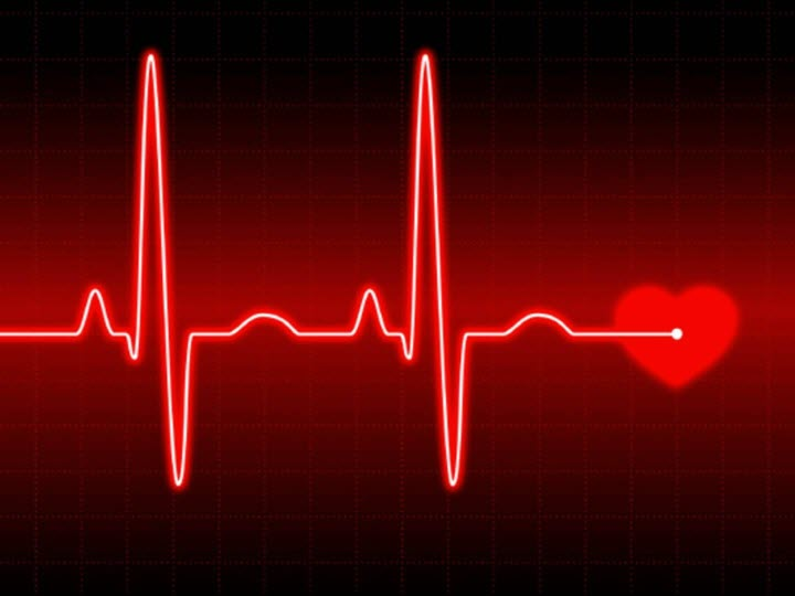 Сбой сердечного ритма