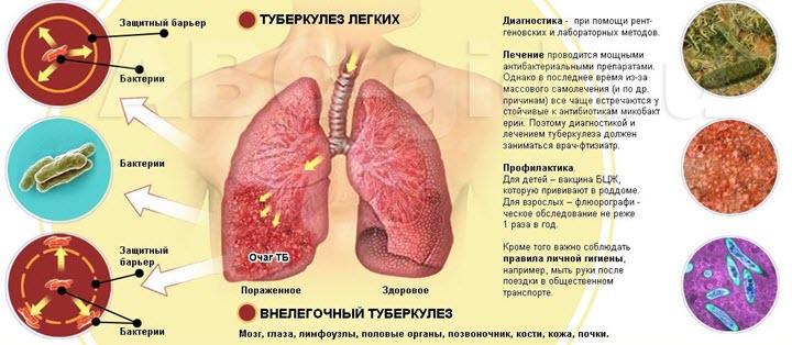 О туберкулезе