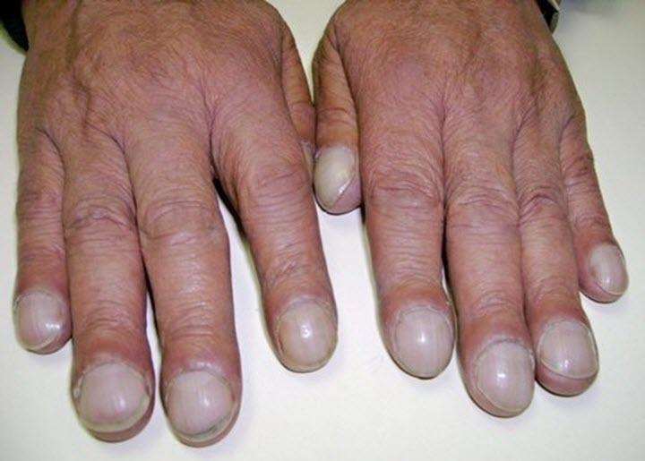 Ногти больного альвеолитом