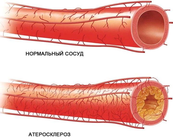 Атеросклероз сердечной аорты