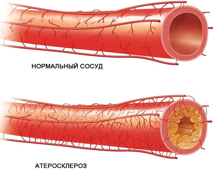 Атеросклерозная бляшка