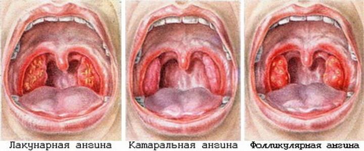 Классификация видов заболевания