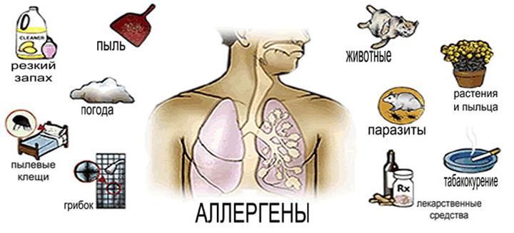 Возможные причины астмы
