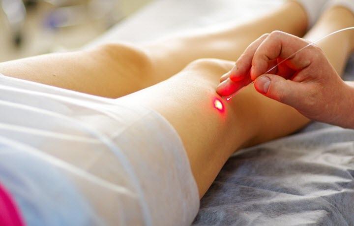Лазерный метод лечения варикоза