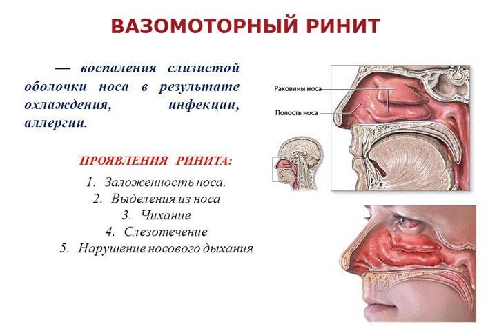 Схема распространения болезни