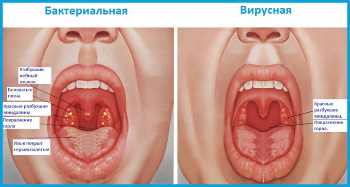 Бактериальная и вирусная ангины