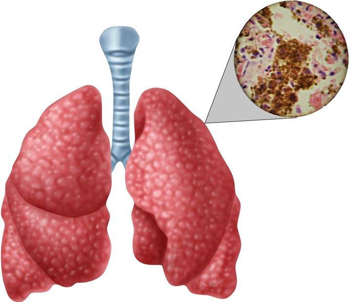 Схема заражения легких