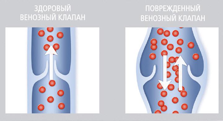 Схема варикозной вены