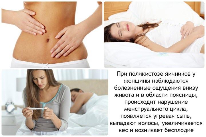 Симптоматика поликистоза