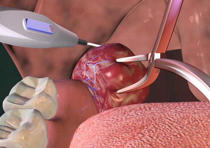 Удаление миндалин при тонзиллите