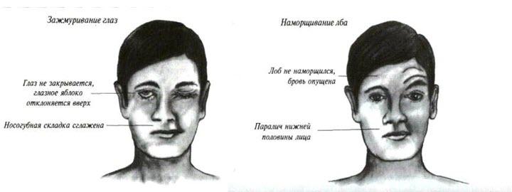 Видимые симптомы инсульта