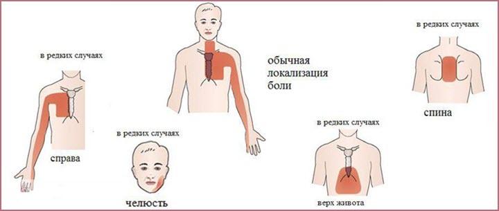 Типичные и редкие симптомы стенокардии