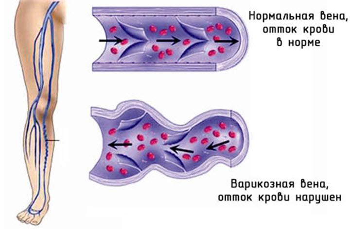 Схематичное изображение тромбофлебита