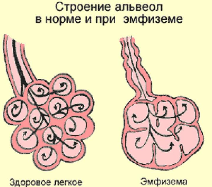 Схема эмфиземы