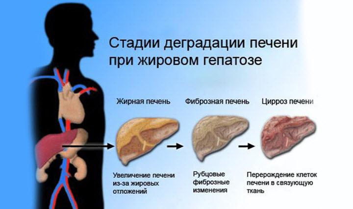 Схема ожирения печени