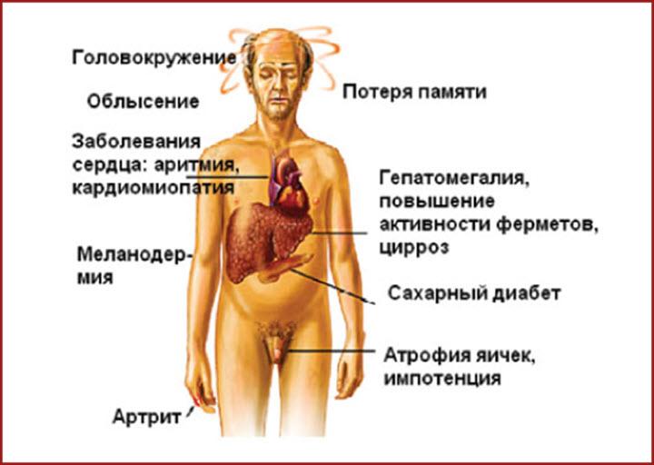 Изменения внешности при циррозе печени