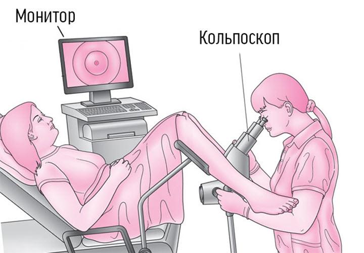 Проведение кольпоскопии