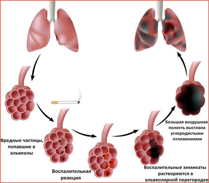 Альвеолы легких при эмфиземе