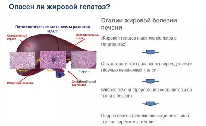 Стадии жирового гепатоза печени