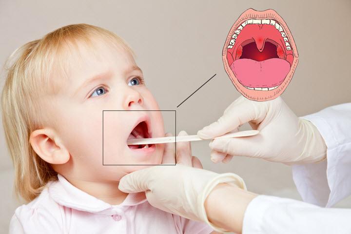 Воспаление миндалин при тонзиллите