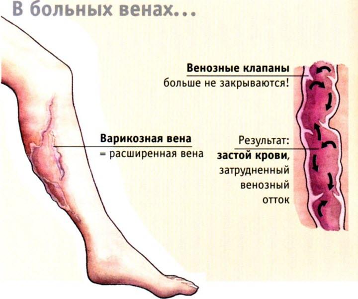 Схема заболевания флебит