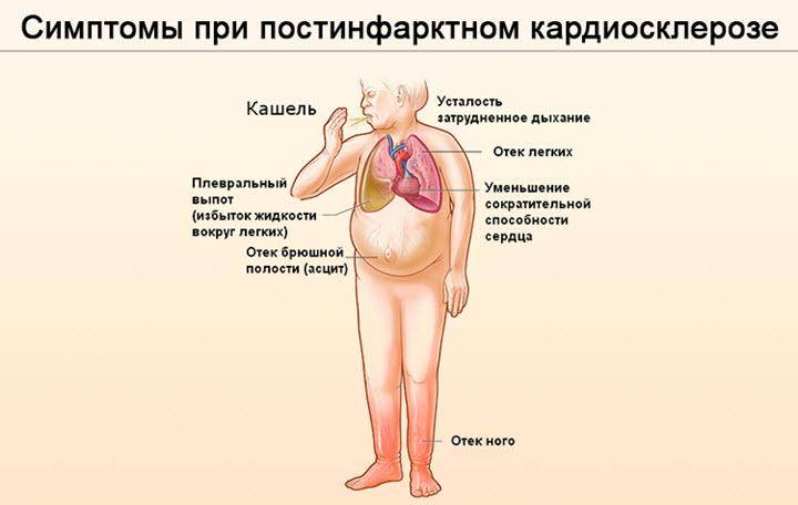 Симптомы постинфарктного кардиосклероза
