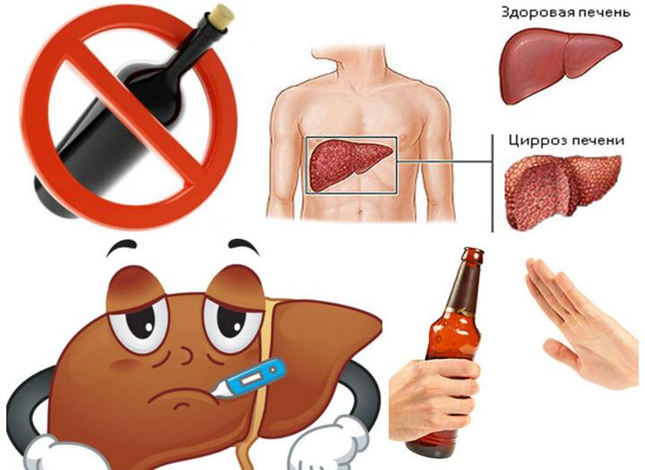 Алкоголь - главная причина цирроза печени