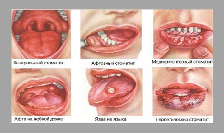 Виды стоматитов