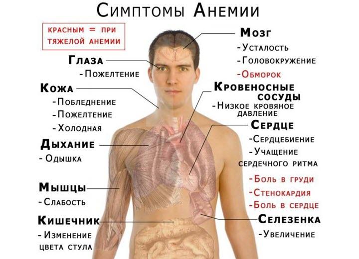 Симптомы железодефицитной анемии