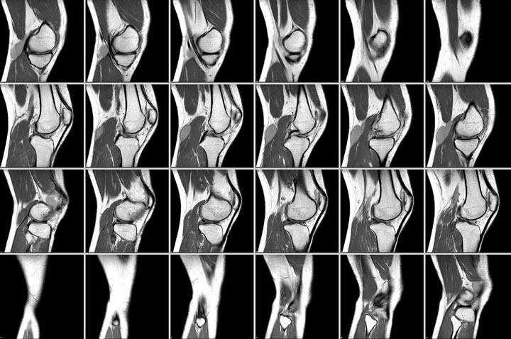 КТ при остеоартрите