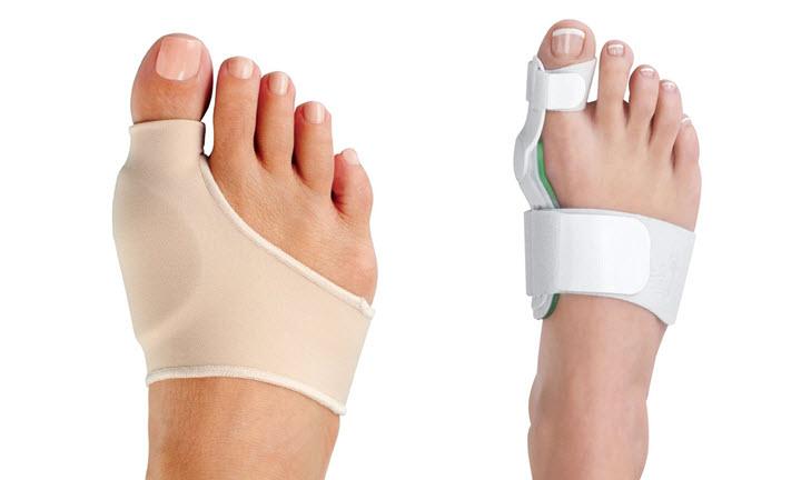 Лечение бурсита стопы
