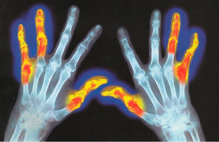 Воспаленные суставы рук