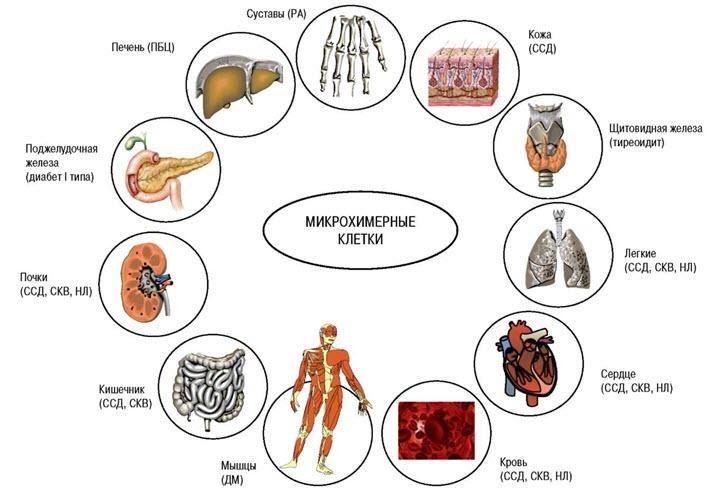 Какие органы поражает склеродермия