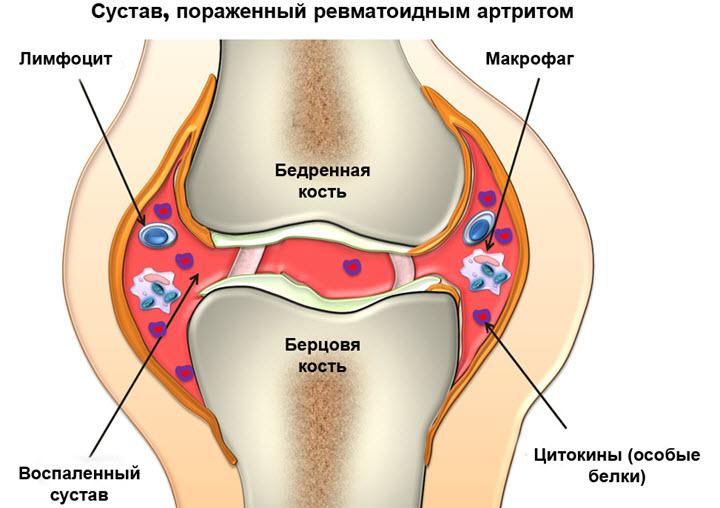 Схема пораженного сустава