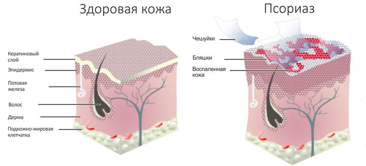 Способы лечения псориаза морской солью