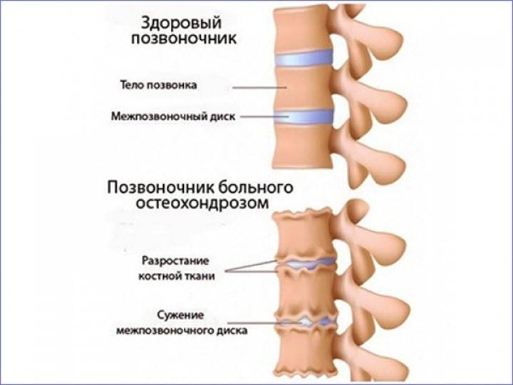 Позвоночник с остеохандрозом