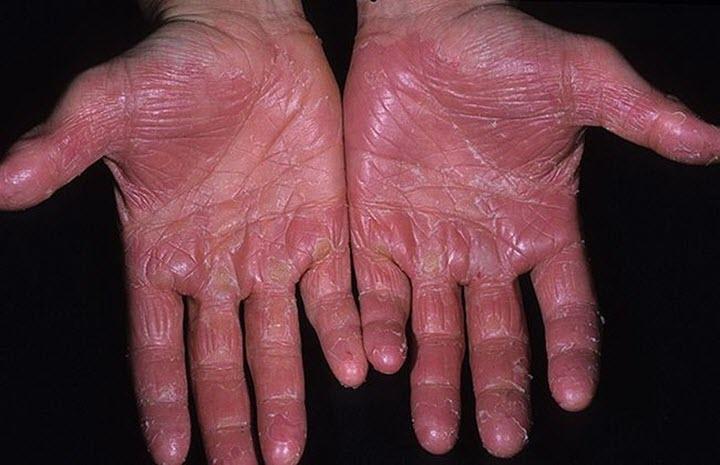 Дерматоз рук