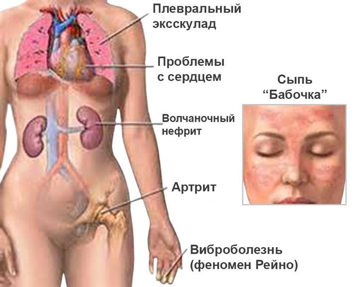 Симптомы красной волчанки
