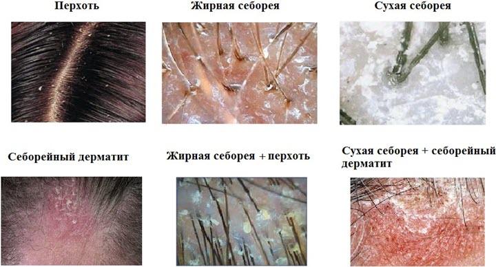 Классификация себореи
