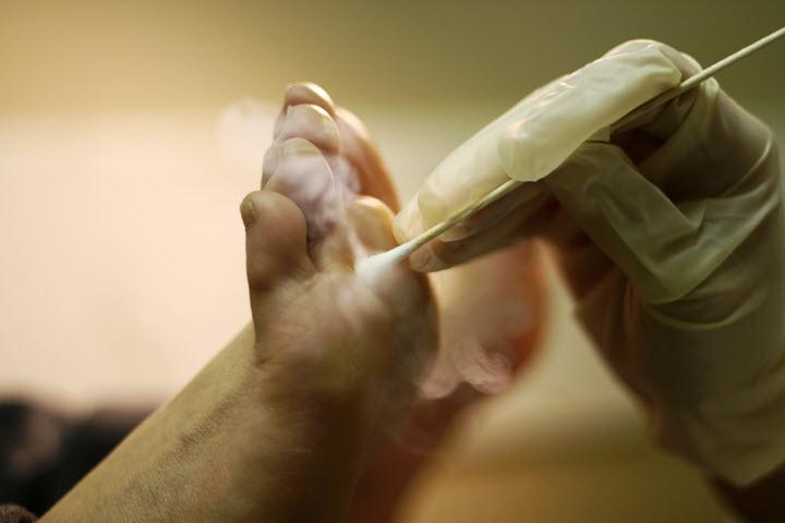 Лечение сухих мозолей азотом