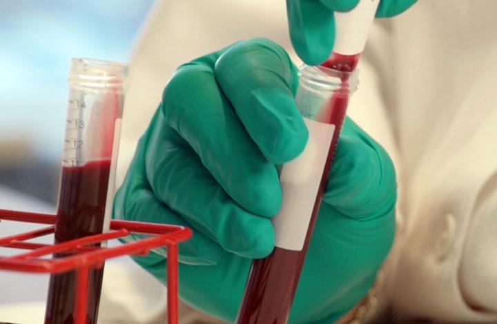 Клиническое исследование крови