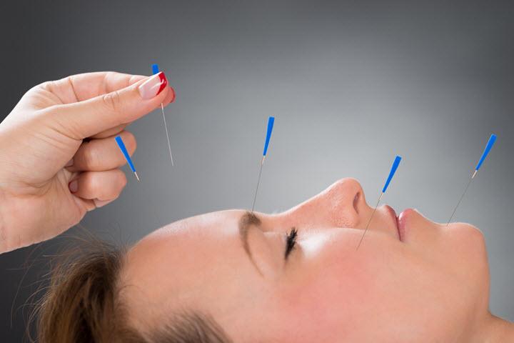 Иглоукалывание как один из способов лечения невралгии