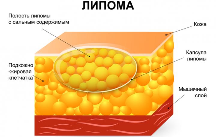 Схема жировика