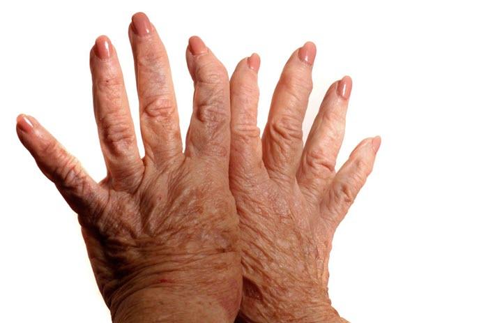 Поражение кожи и суставов рук при склеродермии