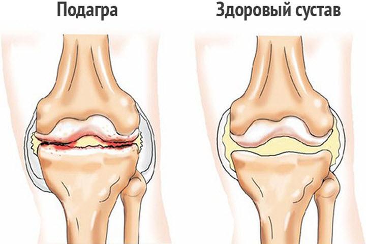 Больной и здоровый суставы
